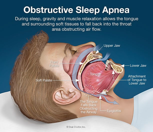 The most common form of sleep apnea is obstructive.