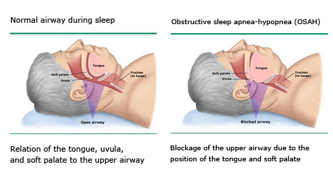 Snoring is caused by the partial blockage of airways