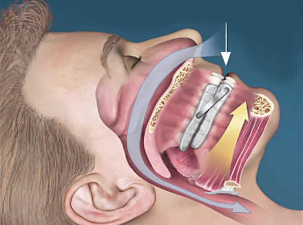 leep-Apnea-Mouthpiece-Better-Than-CPAP