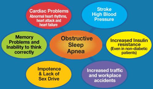 Obstructive Sleep Apnea