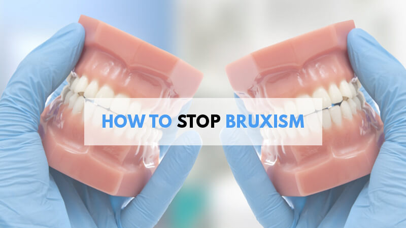 how-to-stop-bruxism-teeth-grinding