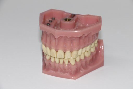 teeth with bruxism